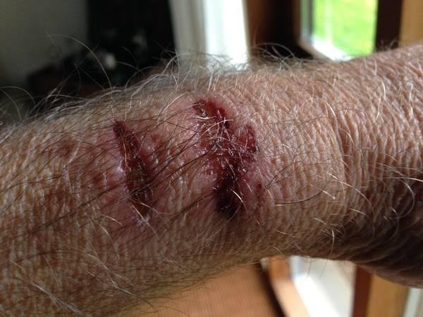 Heridas supuestamente provocadas por el Apple Watch