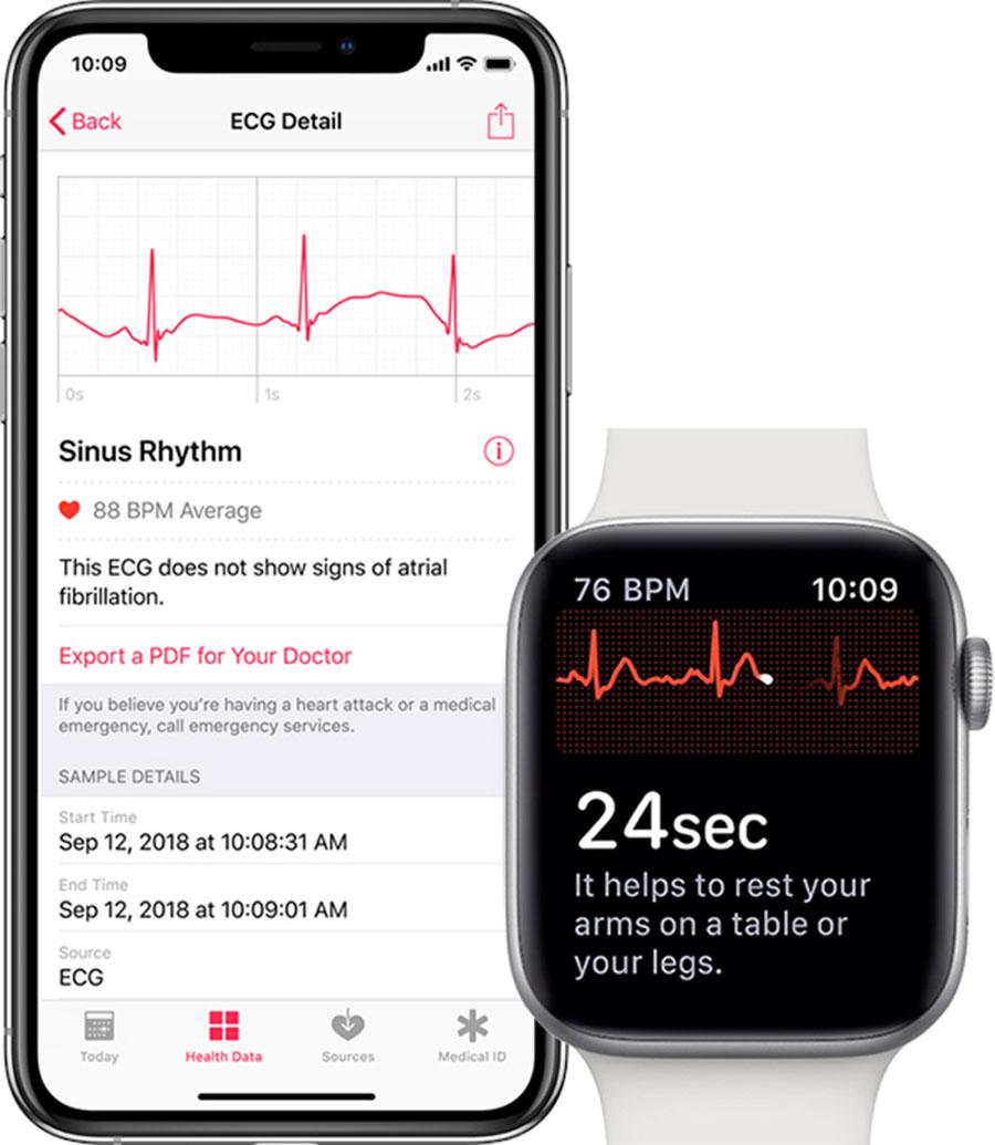 Electrocardiogramas en el Apple Watch