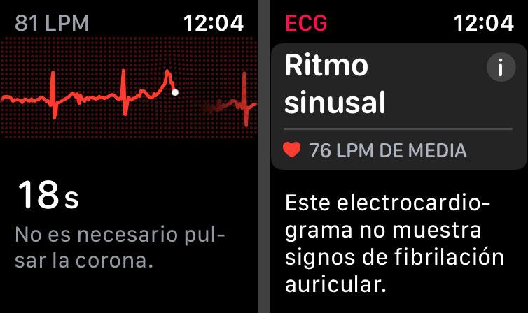 Electrocardiograma en el Apple Watch